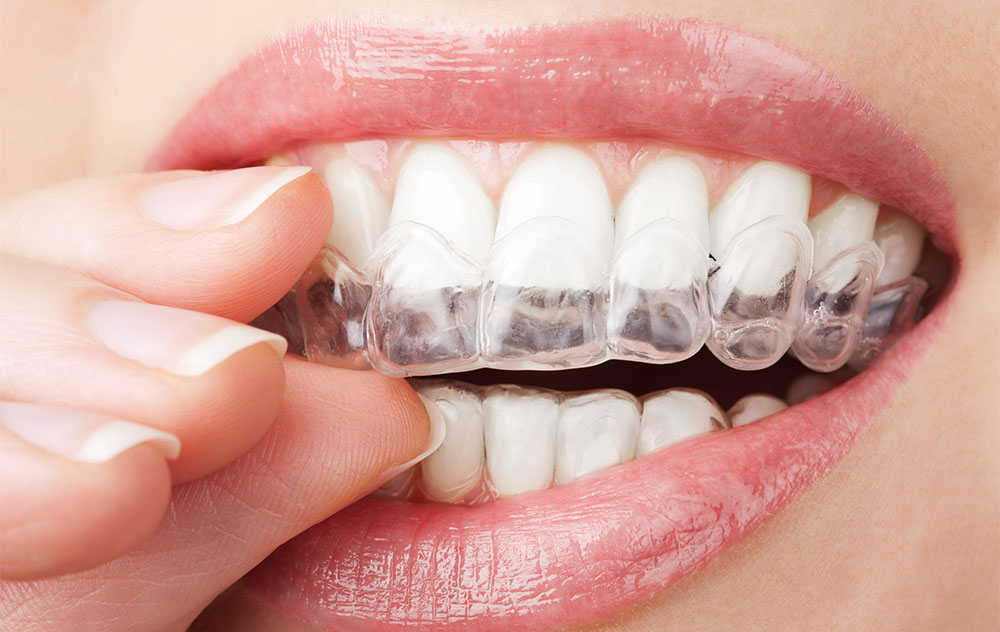 ortodoncja – Saskie Centrum Zdrowia i Odnowy